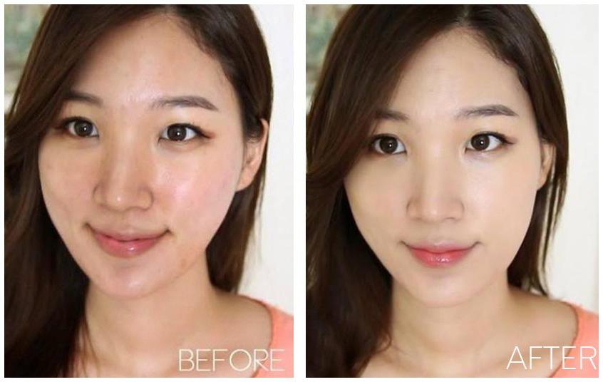 khách hàng sử dụng max'skin serum