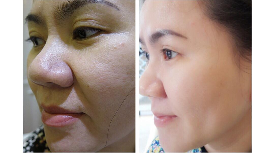 khách hàng Vip'Skin Cleanser