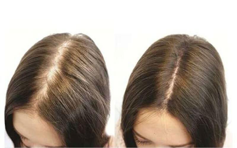Đánh giá của khách hàng Viên uống hỗ trợ mọc tóc Phyto